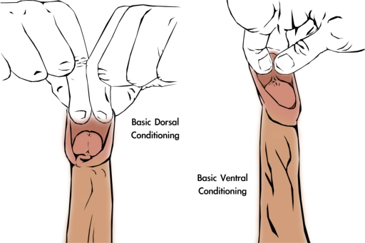 Foreskin restoration basic manual tugging method 3