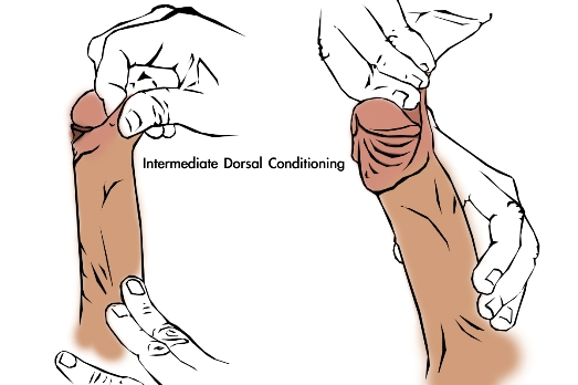 Method 1 manual tugging for stretching/tensioning the dorsal side of the penis foreskin