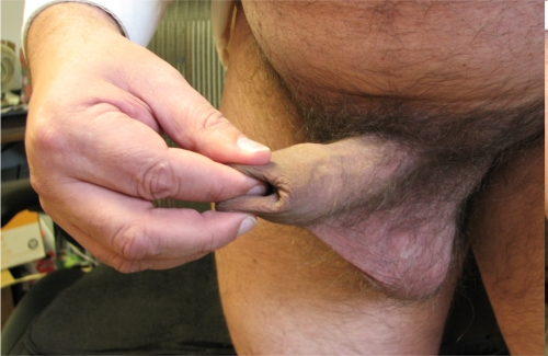 Squeeze-stretch manual tugging with tip of finger inside skin tube of foreskin