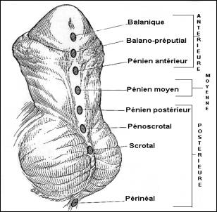 Hypospadias of the penis - Various locations of the urinary opening