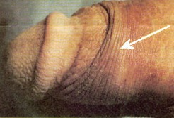 ridged band of the foreskin