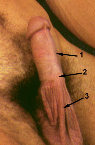 Scrotal Skin on Penis - Turkey Neck
