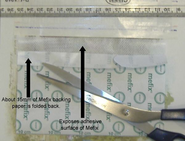 Restoring foreskin t-taping backing mefix tape Foreskin Restoration