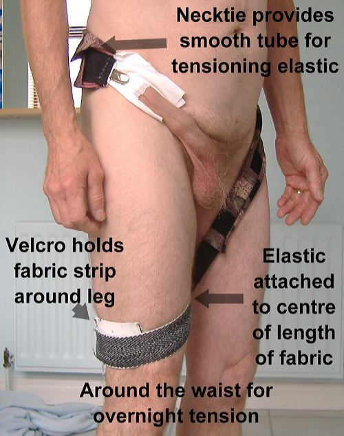 Foreskin restoration t-tape taped elastic around the waist